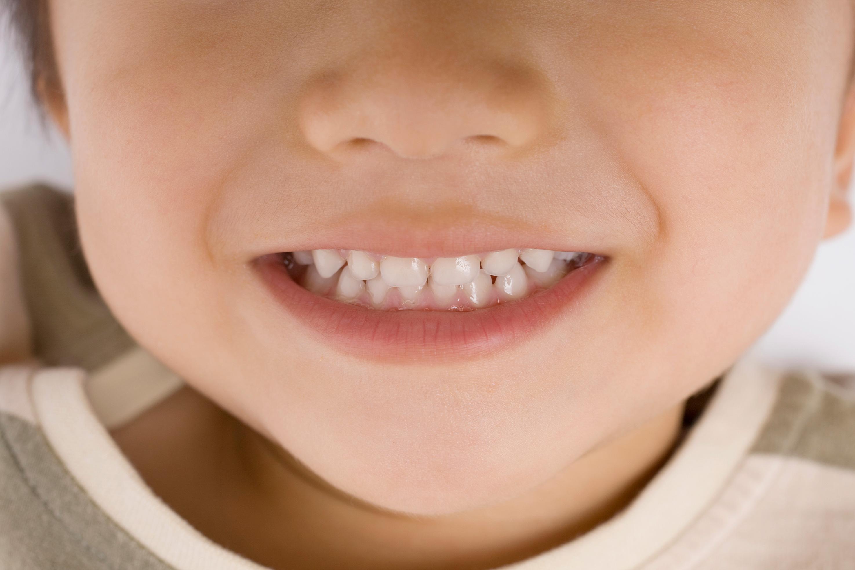 お子さんたちがイメージする「歯科治療で出る痛み」とは